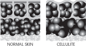 cell structure for cellulite1